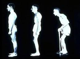 Обзор болезни Бехтерева: причины, симптомы, диагностика и лечение
