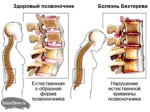 болезнь Бехтерева у женщин (поражение позвоночника)