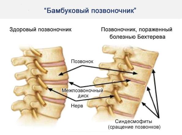 симптом бамбуковой палки