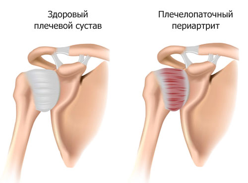 плечелопаточный периартрит