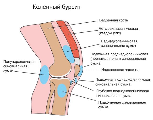дипроспан при болях в суставах форум