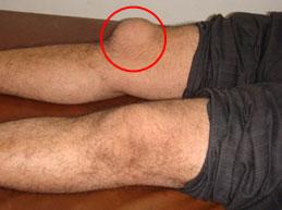 Причины, симптомы и лечение бурсита коленного сустава