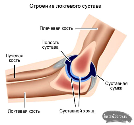 Хронический бурсит локтевого сустава