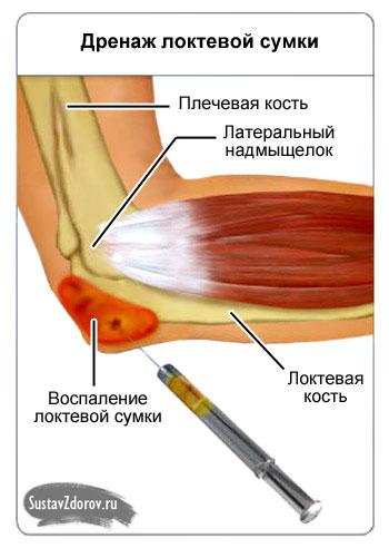воспаление бурсы в районе локтевого отростка