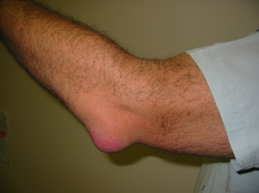 Обзор бурсита локтевого сустава: суть болезни, виды, симптомы и лечение