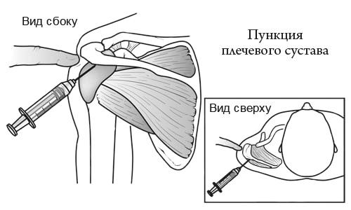 Пункция плечевого сустава ошибки ужасные боли в суставах