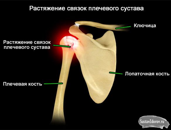 Последствия разрыва связок плечевого сустава остеофиты голеностопного сустава фото