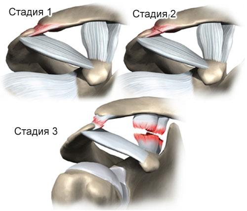 3 степени растяжения связок плечевого сустава
