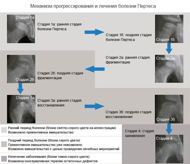 механизм прогрессирования и лечения болезни Пертеса