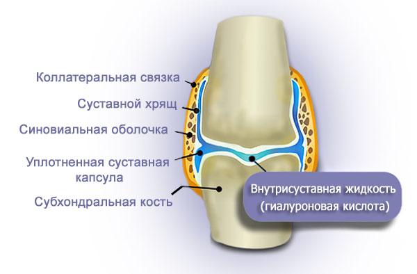 Гиалуроновая кислота препараты для инъекций в суставах артроз, остеопороз, эндоротезирование коленного сустава