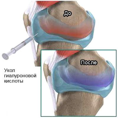 Уколы гиалуроновой кислоты в коленный сустав отзывы здоровье хрящевая ткань в коленном суставе