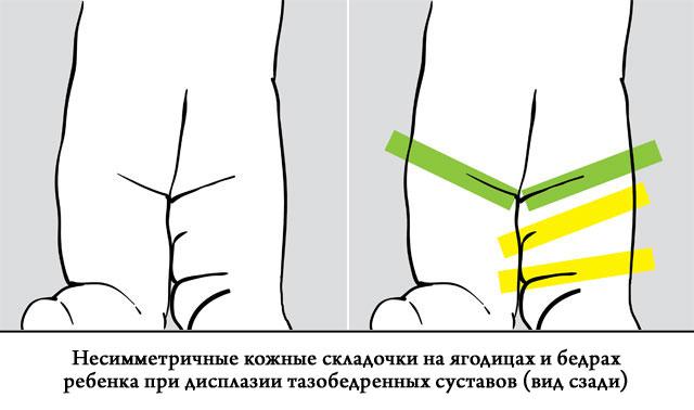 несимметричные кожные складочки на ягодицах и бедрах ребенка при дисплазии тазобедренных суставов