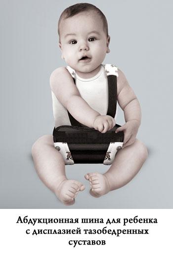абдукционная шина для ребенка с дисплазией тазобедренных суставов