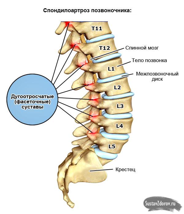 Спондилоартроз поясничного отдела позвоночника: причины, симптомы и лечение