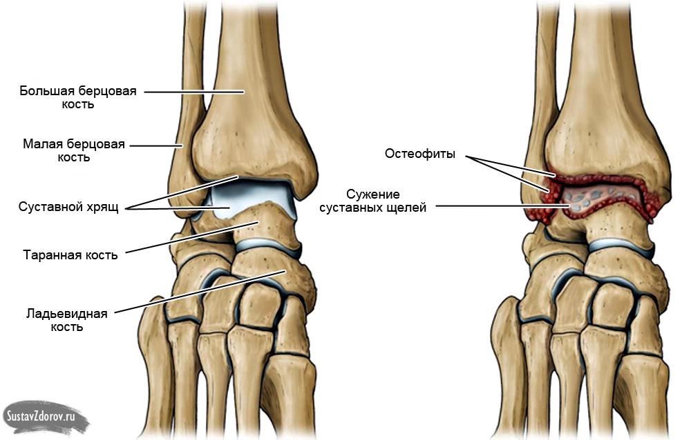 Голеностопный сустава лучелоктевой сустав анатомия