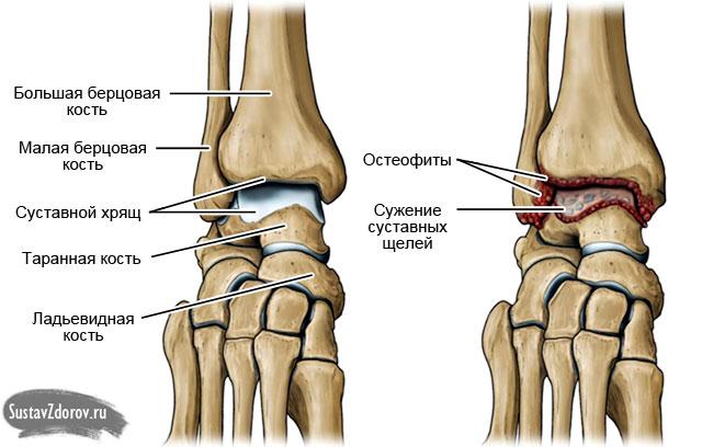 Заболевание суставов лодыжки