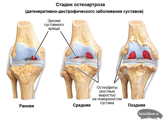 стадии остеоартроза коленного сустава