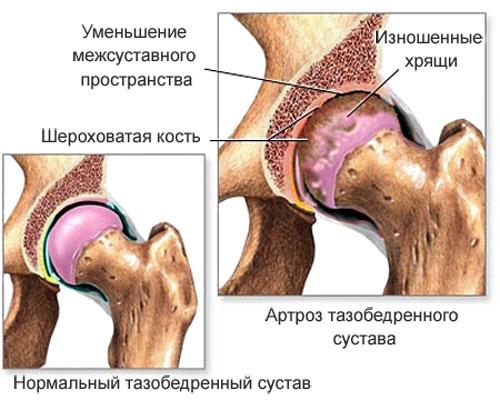 Артроз тазобедренного сустава: симптомы и лечение, причины болезни