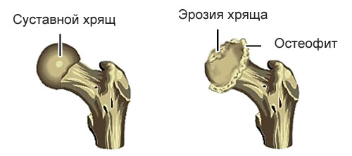 здоровый тазобедренный сустав и пораженный с остеофитами