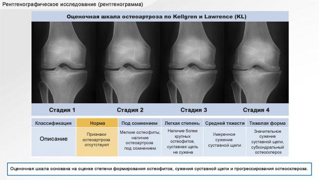 изменение коленного сустава на разных степенях артроза