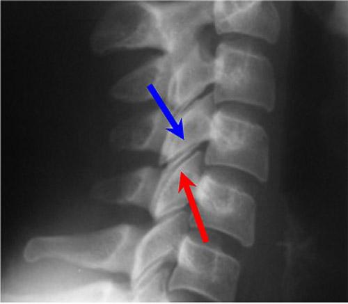 нормальные дугоотросчатые суставы на рентгеновском снимке