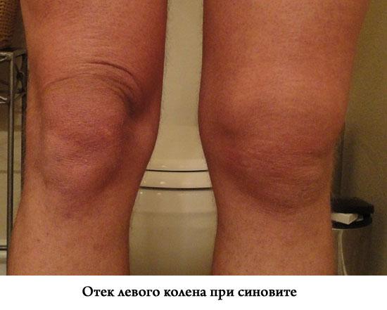 Синусит коленного сустава что это как лечить защемление нерва в плечевом суставе