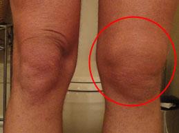 отек левого коленного сустава