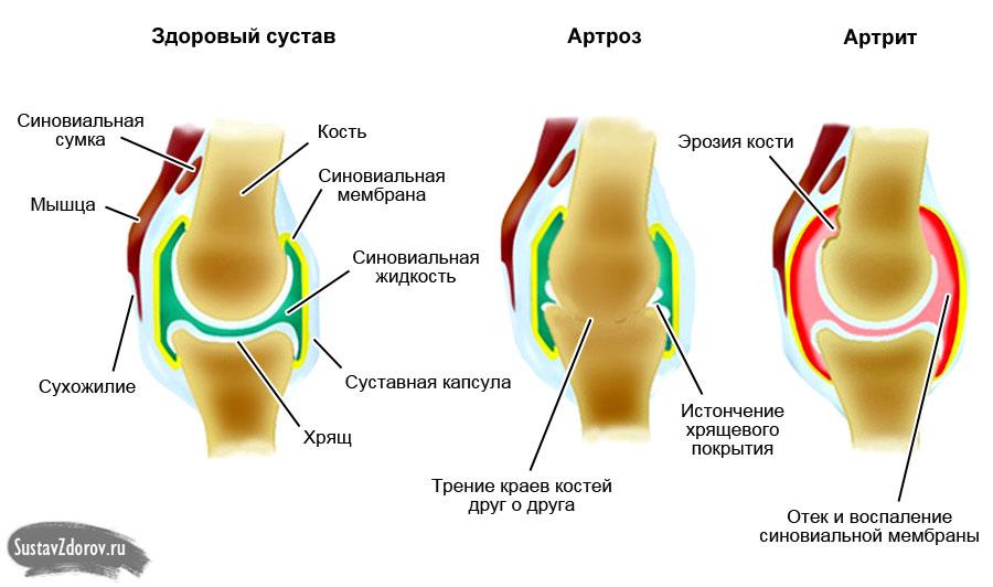 Артрит и артроз: в чем разница (в причинах, симптомах, лечении)?