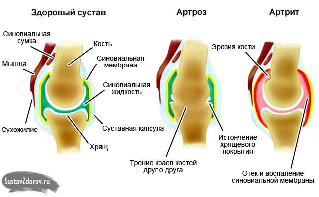нормальный сустав, артроз и артрит