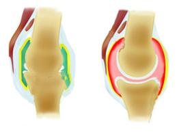 В чем разница между артритом и артрозом? Главные отличия и сходства