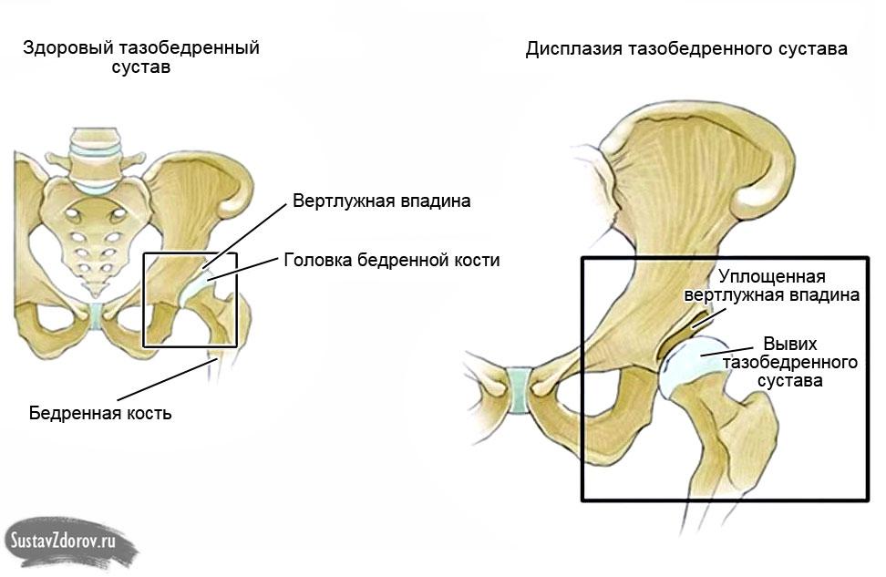 как обезболить тазобедренных суставов у