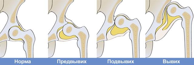три степени дисплазии тазобедренных суставов