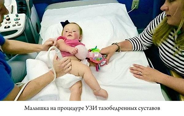 маленькая девочка на процедуре УЗИ тазобедренных суставов