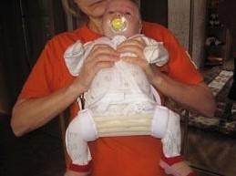малыш с шиной Фрейка