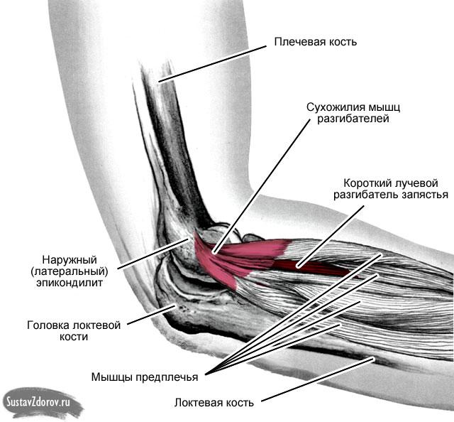Как лечить латеральный эпикондилит локтевого сустава