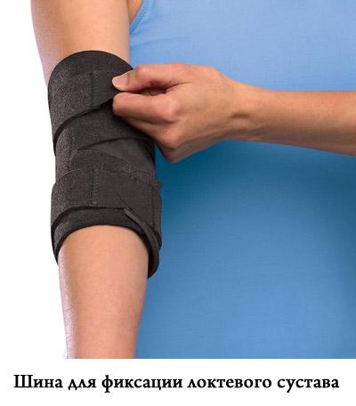 Лечение раздробленного локтевого сустава