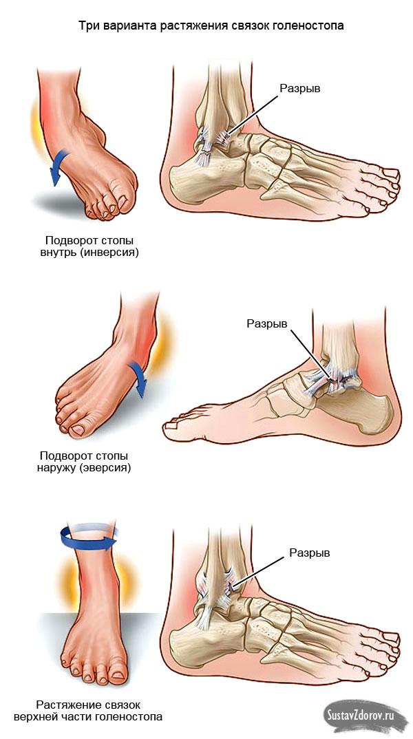 Лечим травмированный сустав голеностоп как лечить сустав на руке