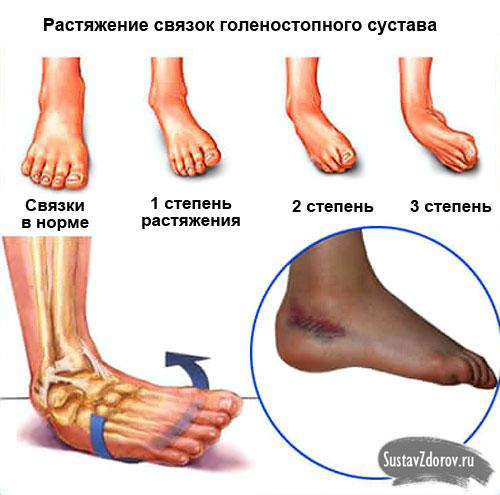 Частичное повреждение связочного аппарата голеностопного сустава очистка суставов ног