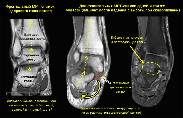 МРТ снимок здорового голеностопа и после травмы