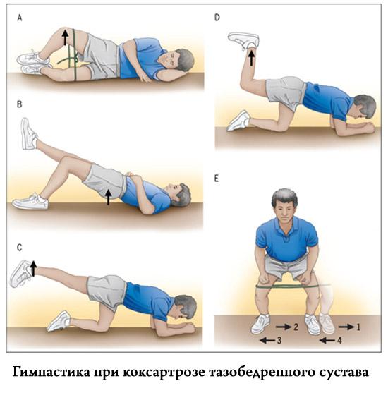 Гимнастика при заболевании тазобедренного сустава мазь вишневского при воспалении суставов