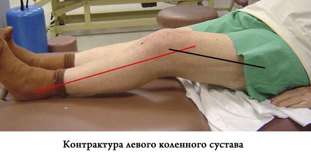 контрактура левого коленного сустава