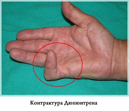 Контрактура: что это такое, причины, симптомы, диагностика и лечение