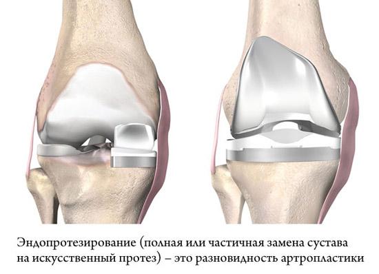 частичное и полное эндопротезирование коленного сустава