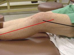 контрактура коленного сустава у пожилой женщины