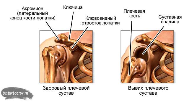 Лечение вывиха плечевого сустава после вправления привычный вывих коленного сустава у собак