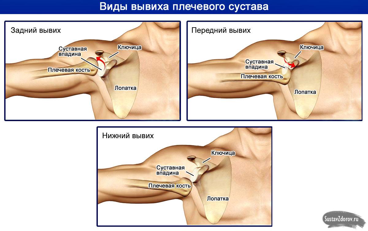 Вывих плечевого сустава как лечить weider витамины для суставов вредно ли это