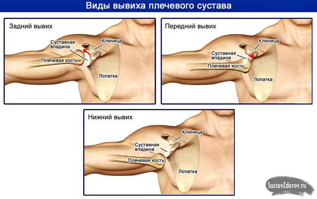 три вида вывиха плеча