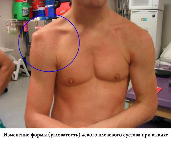 изменение формы, угловатость левого плечевого сустава при вывихе