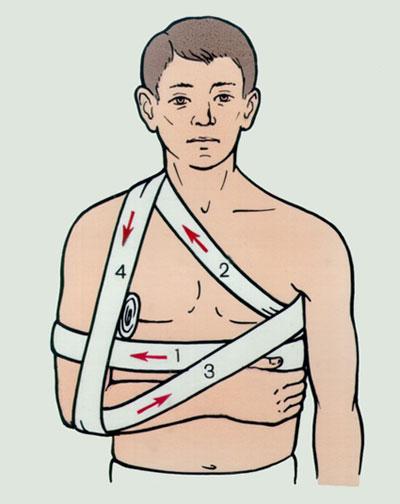 Вывих плечевого сустава симптомы