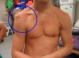 вывих левого плечевого сустава